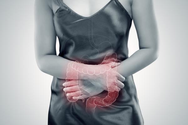 Cannabis no tratamento de Colite Ulcerosa