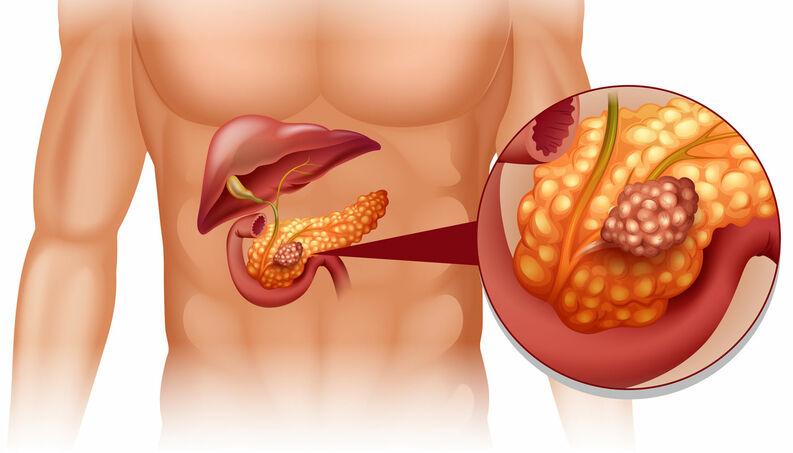 Cannabis no tratamento de Câncer de Pâncreas