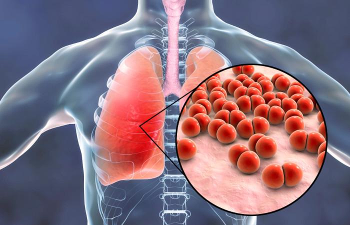 Pneumonia: O que é, Causas, Sintomas e Tratamentos