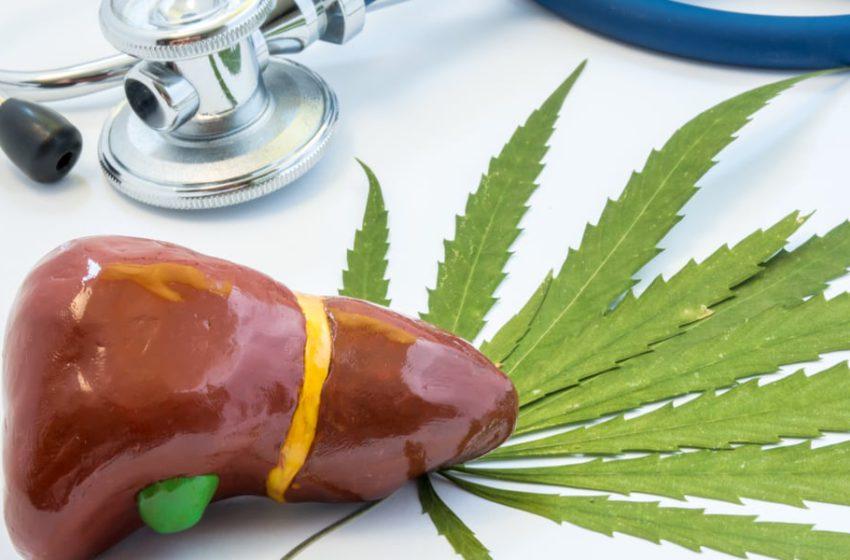 O uso de cannabis poderia influenciar em transplante de fígado?