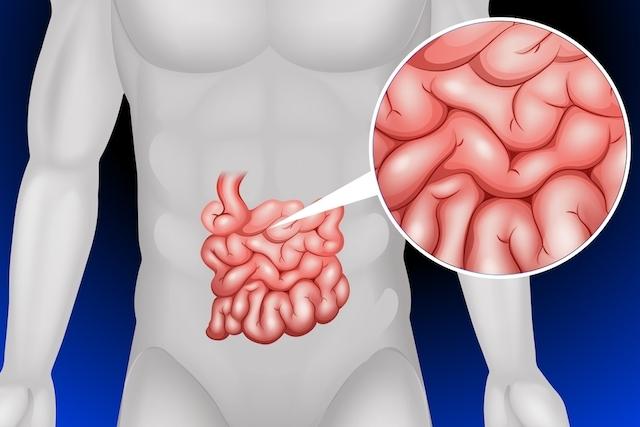 Obstrução Intestinal: O que é, Causas, Sintomas e Tratamentos