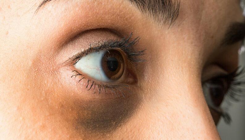 Olheiras: O que é, Tipos, Causas, Cuidados, Prevenção e Tratamentos